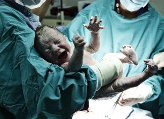 Kind wird durch Kaiserschnitt geboren