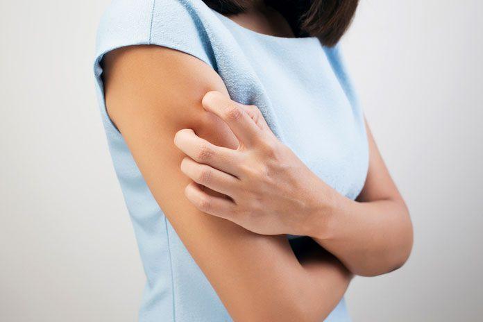 Frau kratzt sich am Arm